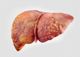11491_liver-cirrhosis-ts-477578412-jpg_7d645182-7a40-4870-a8b1-61cd6be570bb